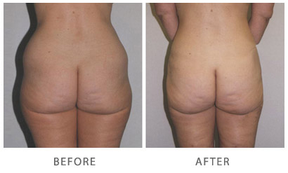 Liposuction Actual Patient Before & After
