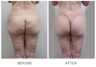 Lower Body Lift Actual Patient Before & After