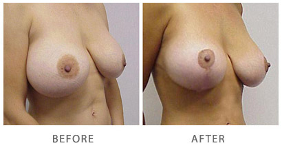 Breast Lift Actual Patient Before & After