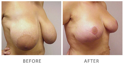 Breast Reduction Actual Patient Before & After