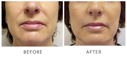 Dermabrassion Actual Patient Before & After