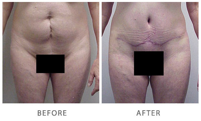 Tummy Tuck Actual Patient Before & After