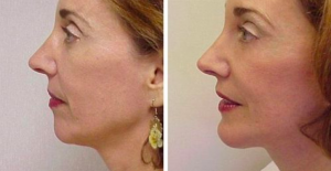 Chin augmentation Patient by Dr Hand