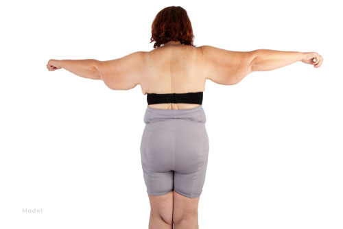 A middle-aged woman with excess fat and skin on her arms would be an ideal candidate for an arm lift surgery.